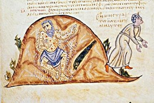 Job's boils (from a 10th Century Byzantine manuscript)